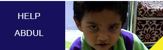 Help Abdul to get treated with ASD surgical closure for the defect in his heart.